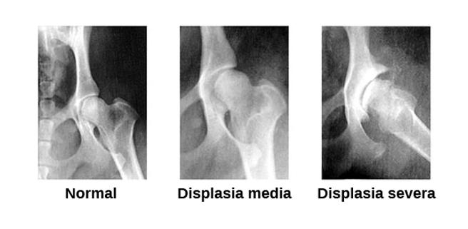 radiografia displasia